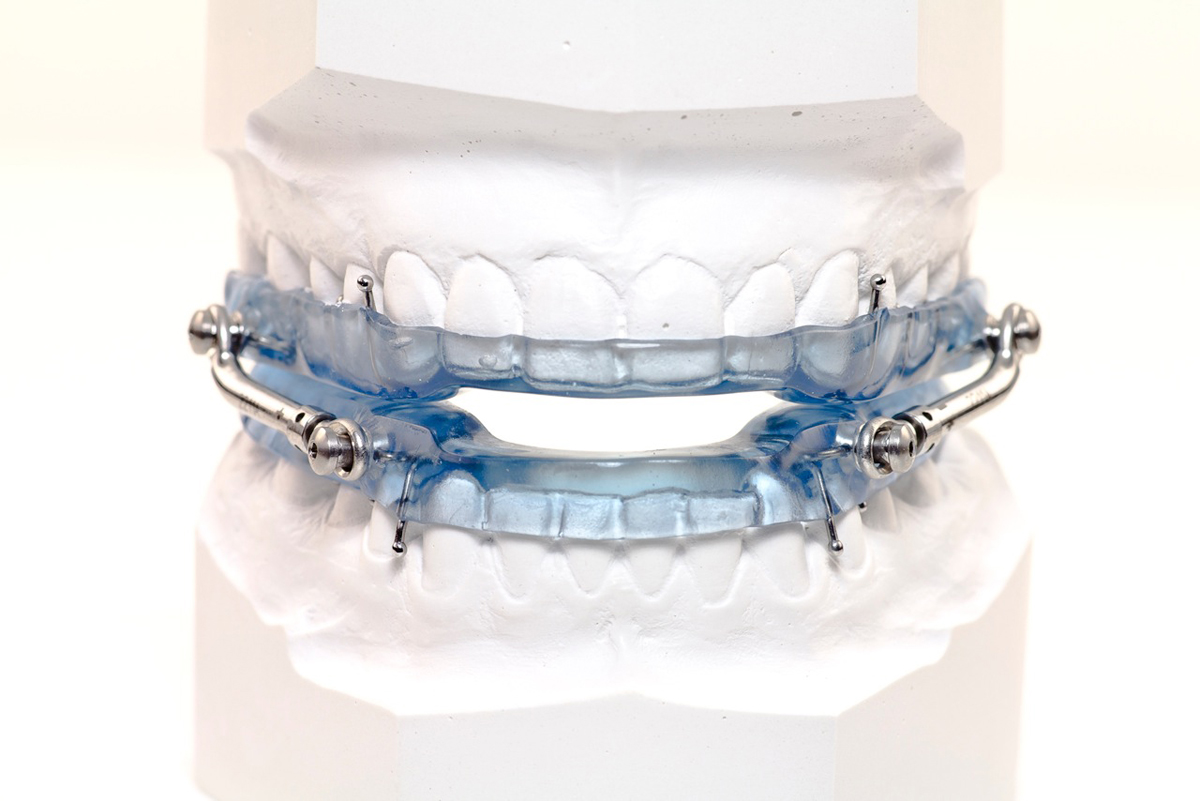 Oral appliance Herbst-3